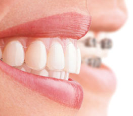 invisalign links oben